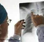 X-ray